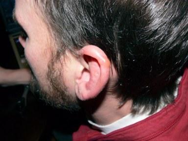 Jack's Frostbit Ear